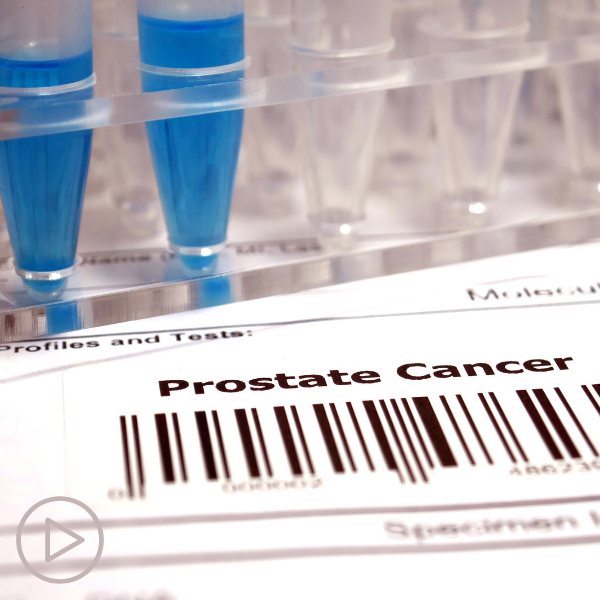 An Update on Prostate Cancer Treatment and Research