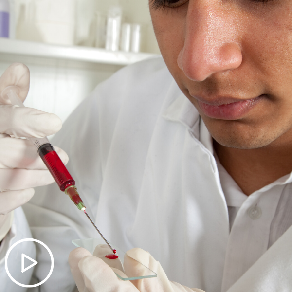 Essential Lab Tests for Myeloproliferative Neoplasm (MPN) Patients