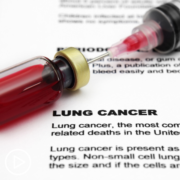 Essential Testing for Lung Cancer Patients: How Results Impact Treatment Choices