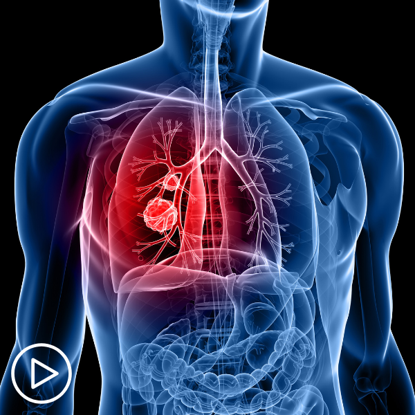 Establishing a Lung Cancer Diagnosis: How Do Subtypes Affect Treatment Choices?