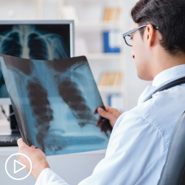 Expert Perspective Exciting Advances in Lung Cancer Treatment and Research