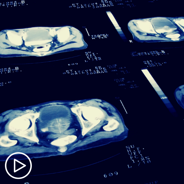 Ask the Prostate Cancer Expert: How Is Prostate Cancer Diagnosis and Treatment Evolving?