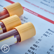 Myeloma Test Results and Factors That Impact Treatment Decisions