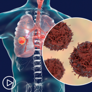 What Are the Advantages of Newer Lung Cancer Treatment Approaches?