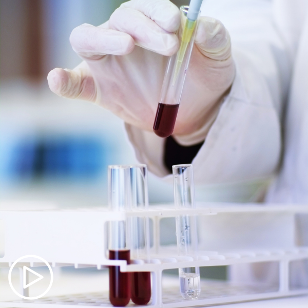 What CLL Tests Are Essential and How Do Results Impact Treatment and Prognosis?