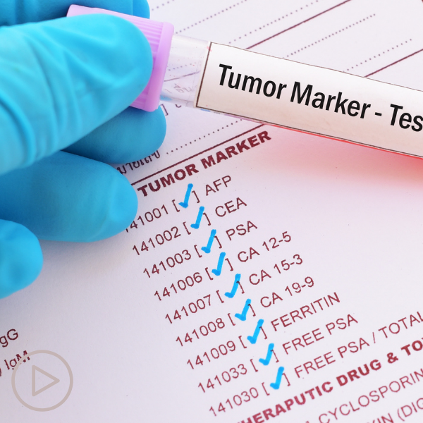 What Is a Prostate Cancer Biomarker