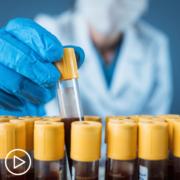 What Standard Testing Follows a Myeloma Diagnosis_ (1)